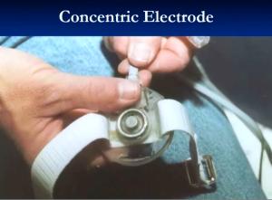 Electrode2
